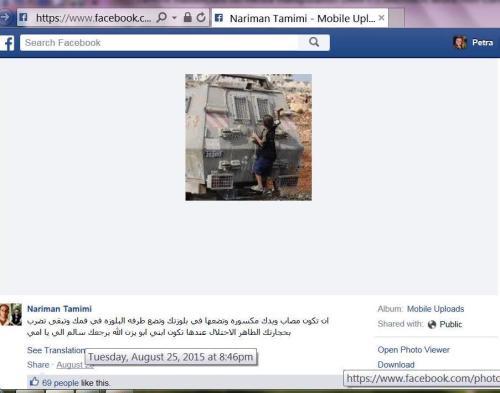 NTamimi 2nd FBpost on broken arm
